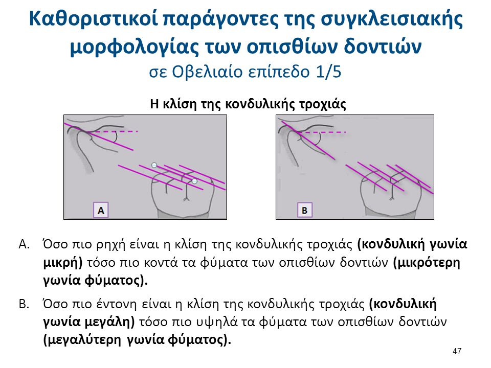 A. Όσο πιο ρηχή είναι η κλίση της κονδυλικής τροχιάς (κονδυλική γωνία μικρή) τόσο πιο κοντά τα φύματα των οπισθίων δοντιών (μικρότερη γωνία φύματος).