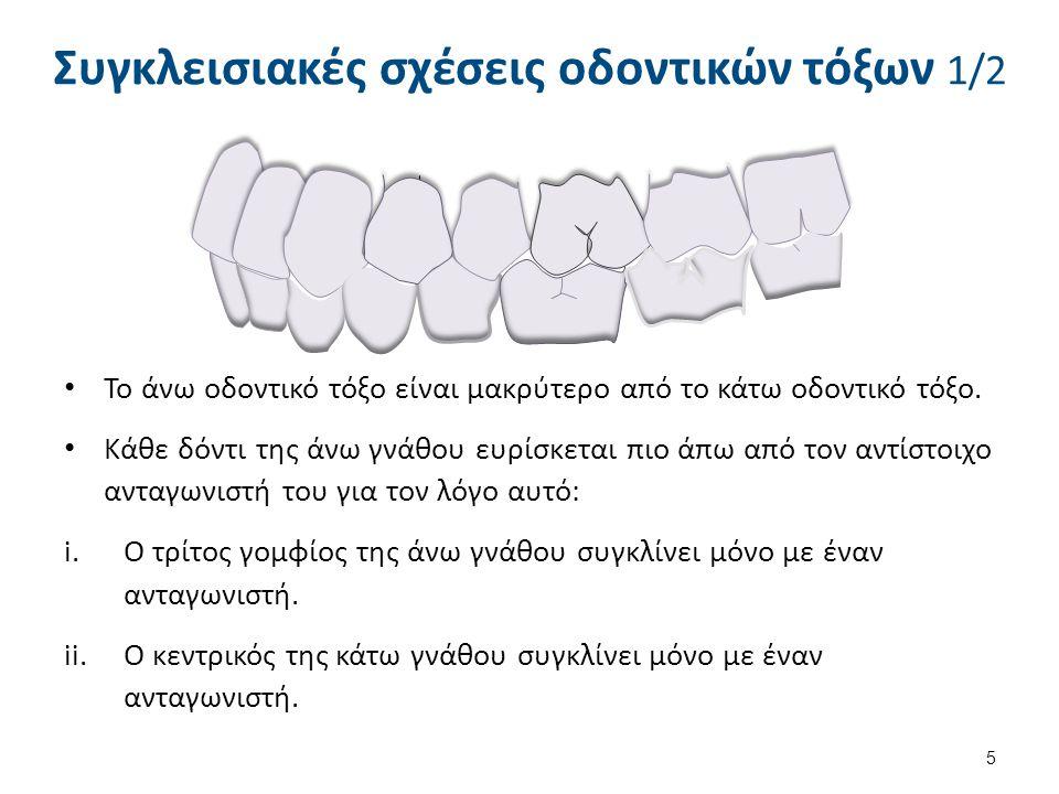 Το άνω οδοντικό τόξο είναι μακρύτερο από το κάτω οδοντικό τόξο. Κάθε δόντι της άνω γνάθου ευρίσκεται πιο άπω από τον αντίστοιχο ανταγωνιστή του για το