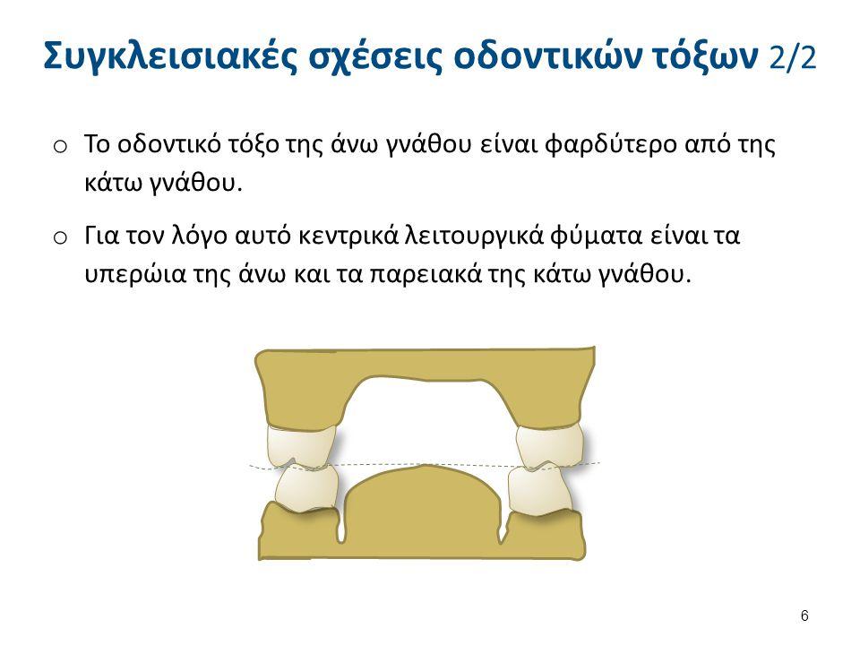 o Το οδοντικό τόξο της άνω γνάθου είναι φαρδύτερο από της κάτω γνάθου. o Για τον λόγο αυτό κεντρικά λειτουργικά φύματα είναι τα υπερώια της άνω και τα