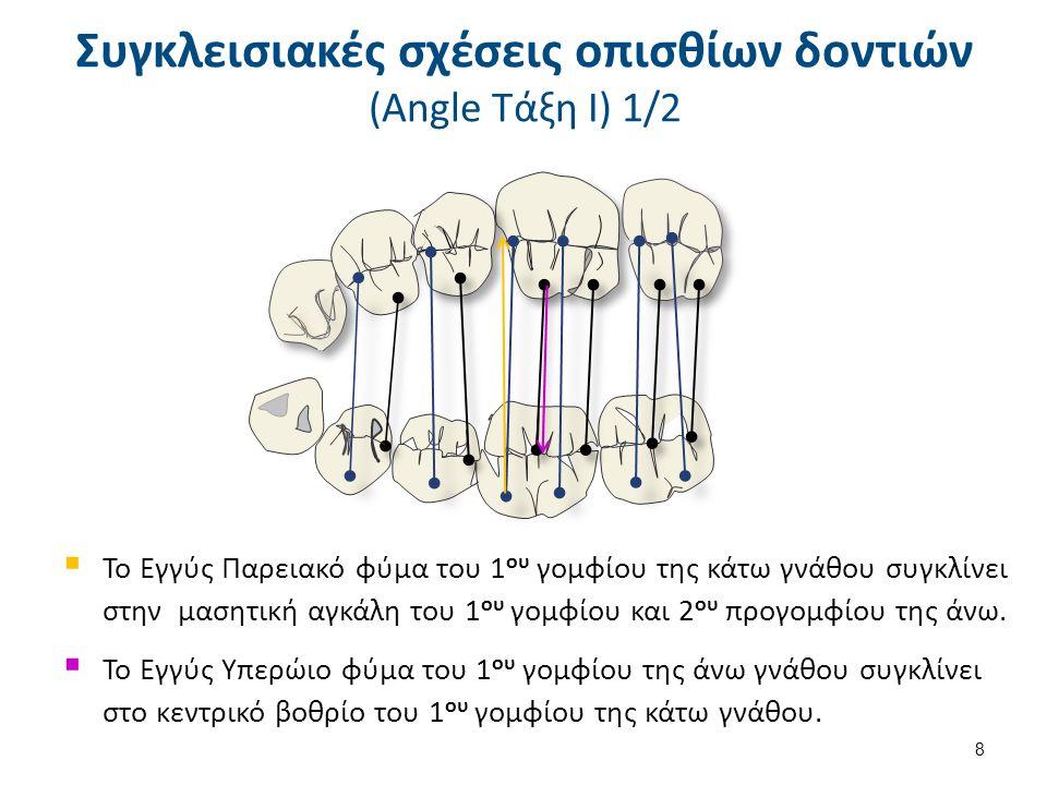 9 Συγκλεισιακές σχέσεις οπισθίων δοντιών (Angle Τάξη ΙΙ) 1/2 Η μεσοπαρειακή αύλακα του 1 ου γομφίου της κάτω γνάθου πιο άπω από το εγγύς παρειακό φύμα του α' γομφίου της άνω γνάθου.