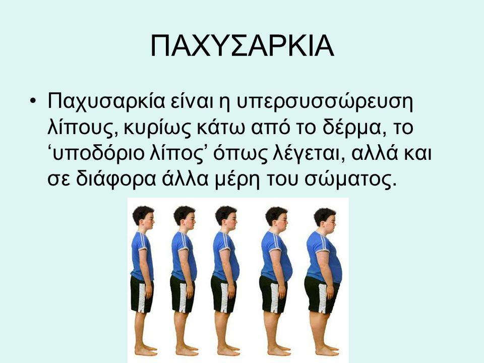ΠΑΧΥΣΑΡΚΙΑ Παχυσαρκία είναι η υπερσυσσώρευση λίπους, κυρίως κάτω από το δέρμα, το 'υποδόριο λίπος' όπως λέγεται, αλλά και σε διάφορα άλλα μέρη του σώμ
