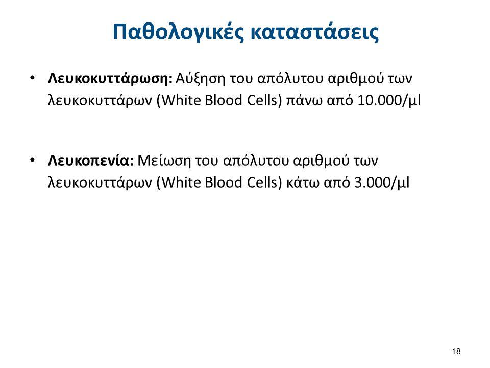 Παθολογικές καταστάσεις Λευκοκυττάρωση: Αύξηση του απόλυτου αριθμού των λευκοκυττάρων (White Blood Cells) πάνω από 10.000/μl Λευκοπενία: Μείωση του απόλυτου αριθμού των λευκοκυττάρων (White Blood Cells) κάτω από 3.000/μl 18