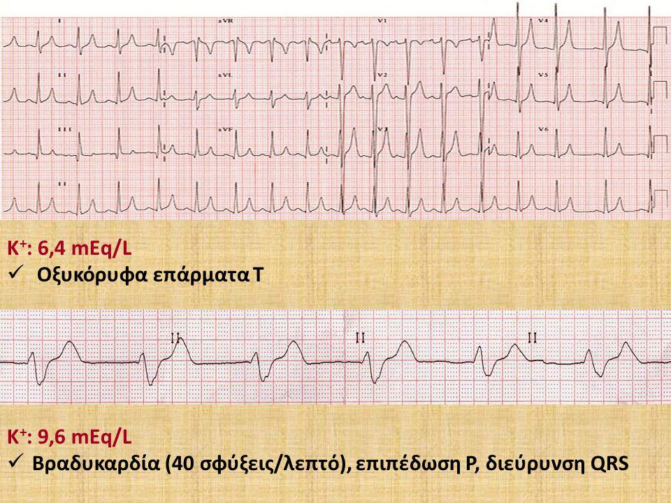 Κ + : 6,4 mEq/L Οξυκόρυφα επάρματα Τ Κ + : 9,6 mEq/L Βραδυκαρδία (40 σφύξεις/λεπτό), επιπέδωση Ρ, διεύρυνση QRS