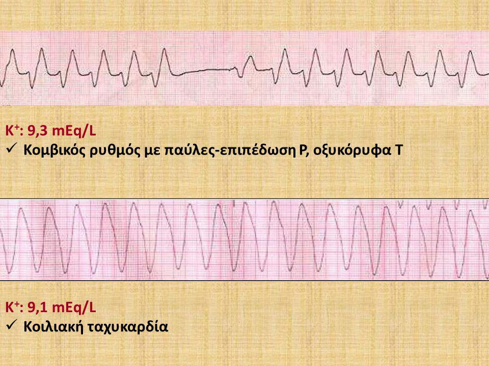 Κ + : 9,3 mEq/L Κομβικός ρυθμός με παύλες-επιπέδωση Ρ, οξυκόρυφα Τ Κ + : 9,1 mEq/L Κοιλιακή ταχυκαρδία