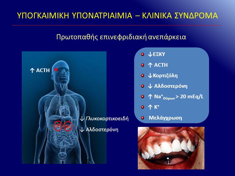 Πρωτοπαθής επινεφριδιακή ανεπάρκεια ↓ΕΞΚΥ ↑ ACTH ↓Κορτιζόλη ↓ Αλδοστερόνη ↑ Na + Ούρων > 20 mEq/L ↑ K + Μελάγχρωση ↑ ACTH ↓ Γλυκοκορτικοειδή ↓ Αλδοστε