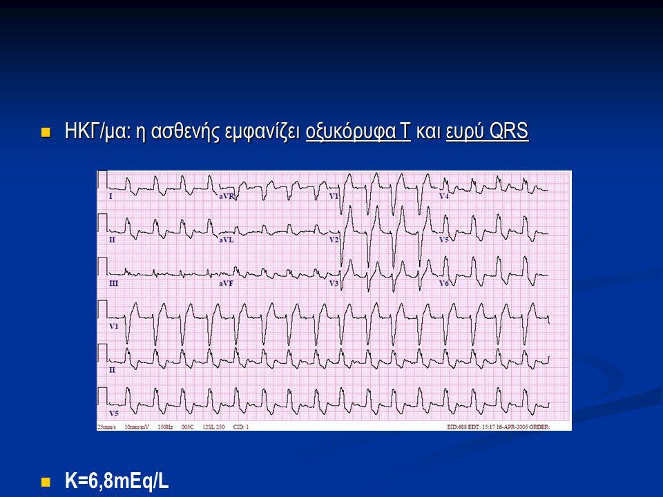 ΗΚΓ/μα: η ασθενής εμφανίζει οξυκόρυφα Τ και ευρύ QRS ΗΚΓ/μα: η ασθενής εμφανίζει οξυκόρυφα Τ και ευρύ QRS K=6,8mEq/L