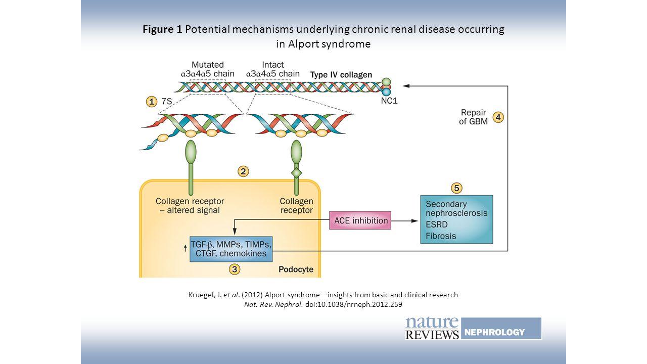 Figure 1 Potential mechanisms underlying chronic renal disease occurring in Alport syndrome Kruegel, J. et al. (2012) Alport syndrome—insights from ba