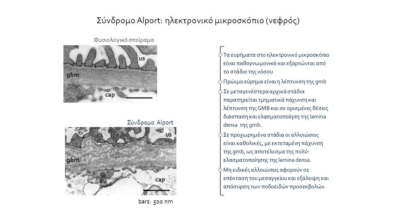 Σύνδρομο Alport: ηλεκτρονικό μικροσκόπιο (νεφρός) us gbm cap Σύνδρομο Alport bars: 500 nm Φυσιολογικό σπείραμα cap us gbm