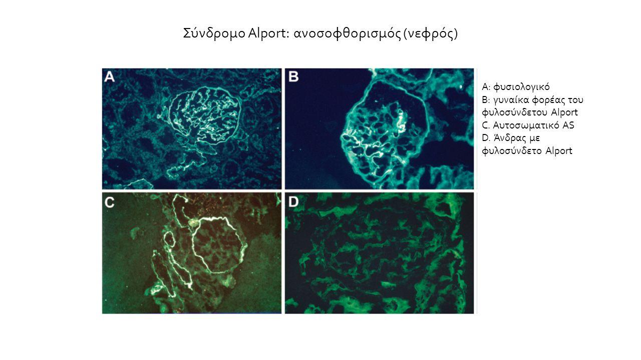 Σύνδρομο Alport: ανοσοφθορισμός (νεφρός) Α: φυσιολογικό Β: γυναίκα φορέας του φυλοσύνδετου Alport C. Αυτοσωματικό AS D. Άνδρας με φυλοσύνδετο Alport
