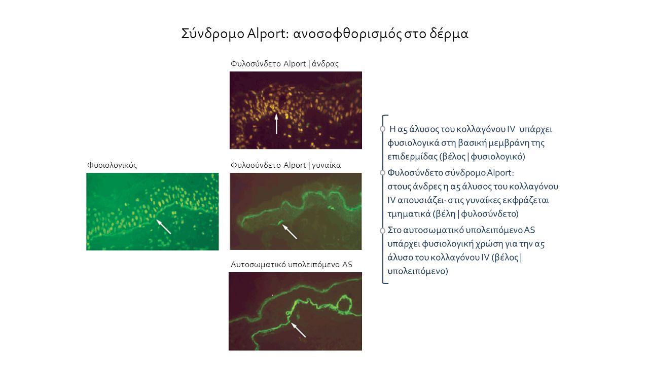 Σύνδρομο Alport: ανοσοφθορισμός στο δέρμα Φυσιολογικός Φυλοσύνδετο Alport | άνδρας Φυλοσύνδετο Alport | γυναίκα Αυτοσωματικό υπολειπόμενο AS