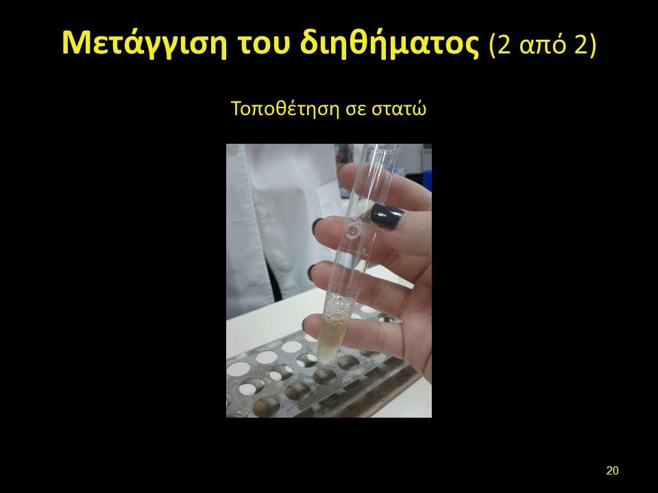 Μετάγγιση του διηθήματος (2 από 2) Τοποθέτηση σε στατώ 20