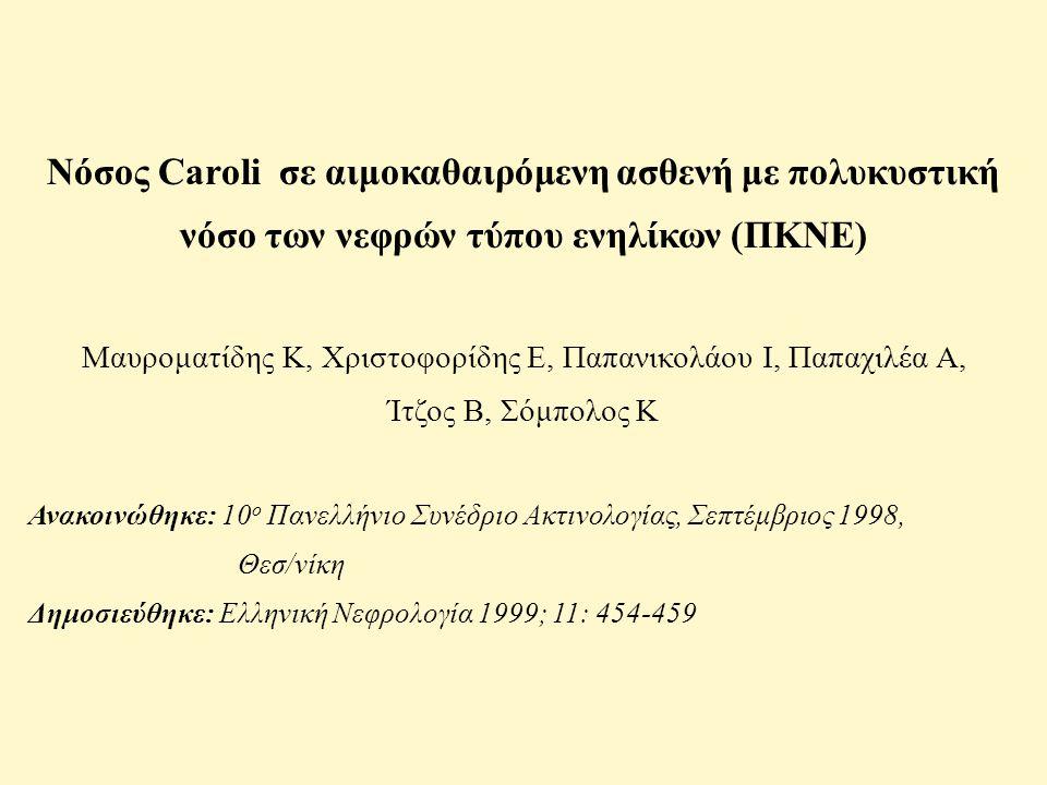 Νόσος Caroli σε αιμοκαθαιρόμενη ασθενή με πολυκυστική νόσο των νεφρών τύπου ενηλίκων (ΠΚΝΕ) Μαυροματίδης Κ, Χριστοφορίδης Ε, Παπανικολάου Ι, Παπαχιλέα Α, Ίτζος Β, Σόμπολος Κ Ανακοινώθηκε: 10 ο Πανελλήνιο Συνέδριο Ακτινολογίας, Σεπτέμβριος 1998, Θεσ/νίκη Δημοσιεύθηκε: Ελληνική Νεφρολογία 1999; 11: 454-459