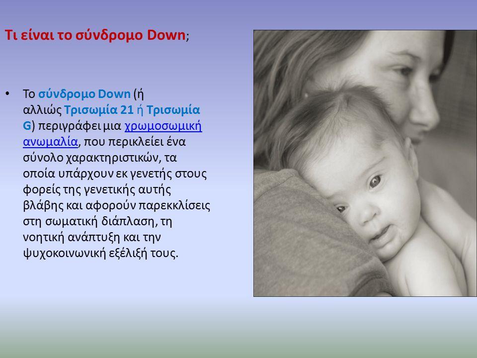 Τι είναι το σύνδρομο Down ; Το σύνδρομο Down (ή αλλιώς Τρισωμία 21 ή Τρισωμία G) περιγράφει μια χρωμοσωμική ανωμαλία, που περικλείει ένα σύνολο χαρακτηριστικών, τα οποία υπάρχουν εκ γενετής στους φορείς της γενετικής αυτής βλάβης και αφορούν παρεκκλίσεις στη σωματική διάπλαση, τη νοητική ανάπτυξη και την ψυχοκοινωνική εξέλιξή τους.