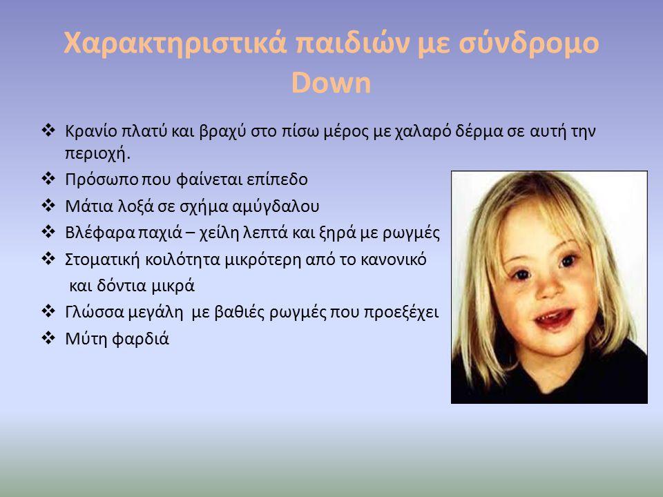Χαρακτηριστικά παιδιών με σύνδρομο Down  Κρανίο πλατύ και βραχύ στο πίσω μέρος με χαλαρό δέρμα σε αυτή την περιοχή.