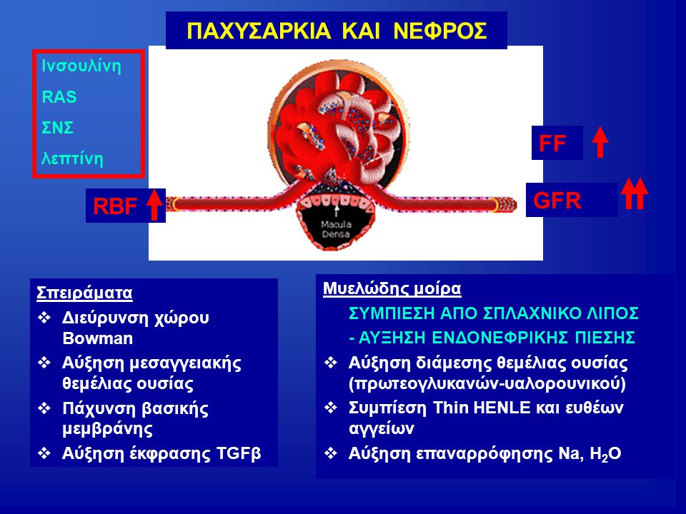 RBF GFR FF Ινσουλίνη RAS ΣΝΣ λεπτίνη ΠΑΧΥΣΑΡΚΙΑ ΚΑΙ ΝΕΦΡΟΣ Σπειράματα  Διεύρυνση χώρου Bowman  Αύξηση μεσαγγειακής θεμέλιας ουσίας  Πάχυνση βασικής