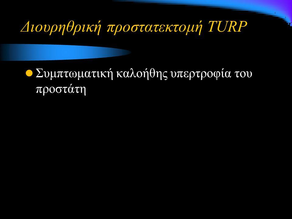 Διουρηθρική προστατεκτομή TURP Συμπτωματική καλοήθης υπερτροφία του προστάτη