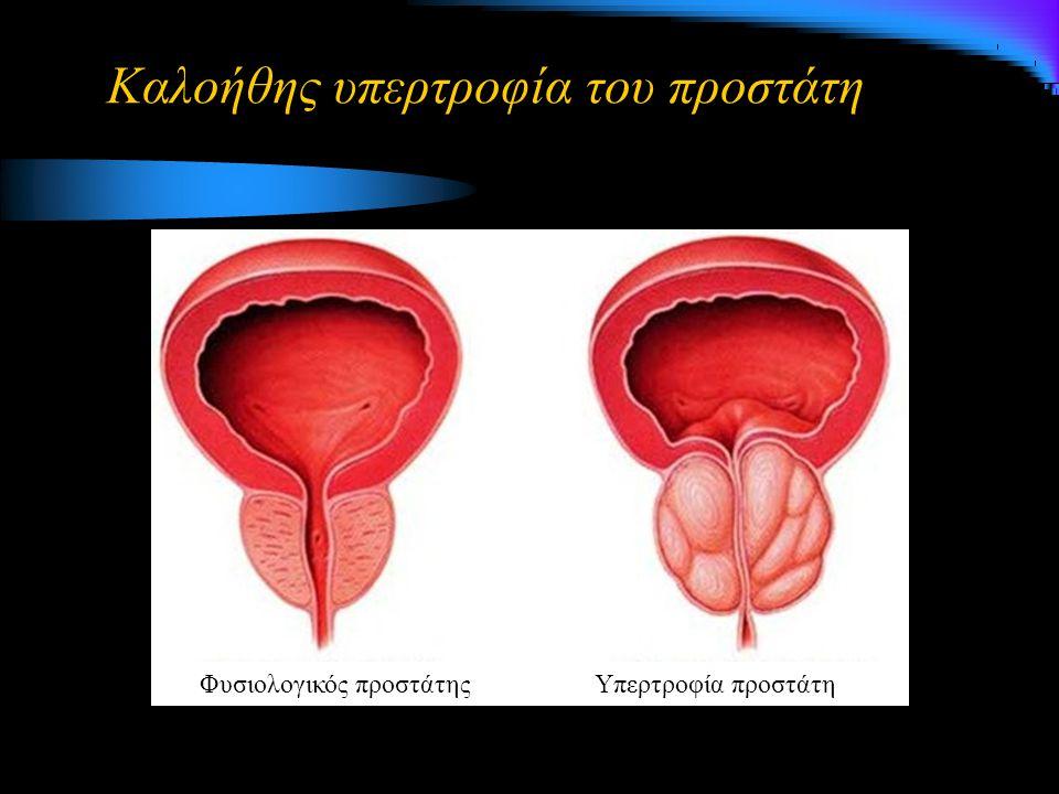 Θεραπεία Αιμόσταση και επίσπευση χειρουργείου Ο 2, αερισμός, αντισπασμωδικά Ατροπίνη, διεγέρτες του συμπαθητικού και Ca 2+ Χορήγηση ισότονου ή υπέρτονου Hawary et al, J Endourol 2009; 23(12): 2013-2020