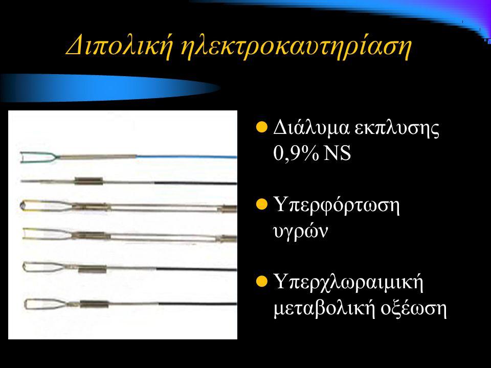 Διπολική ηλεκτροκαυτηρίαση Διάλυμα εκπλυσης 0,9% NS Υπερφόρτωση υγρών Υπερχλωραιμική μεταβολική οξέωση