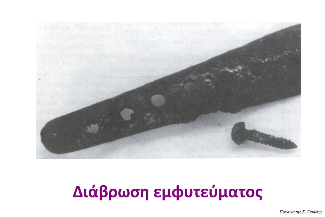 ΔΙΑΒΡΩΣΗ (CORROSION) H ποσότητα του μετάλλου, που απελευθερώνεται στους περιβάλλοντεςιστούς