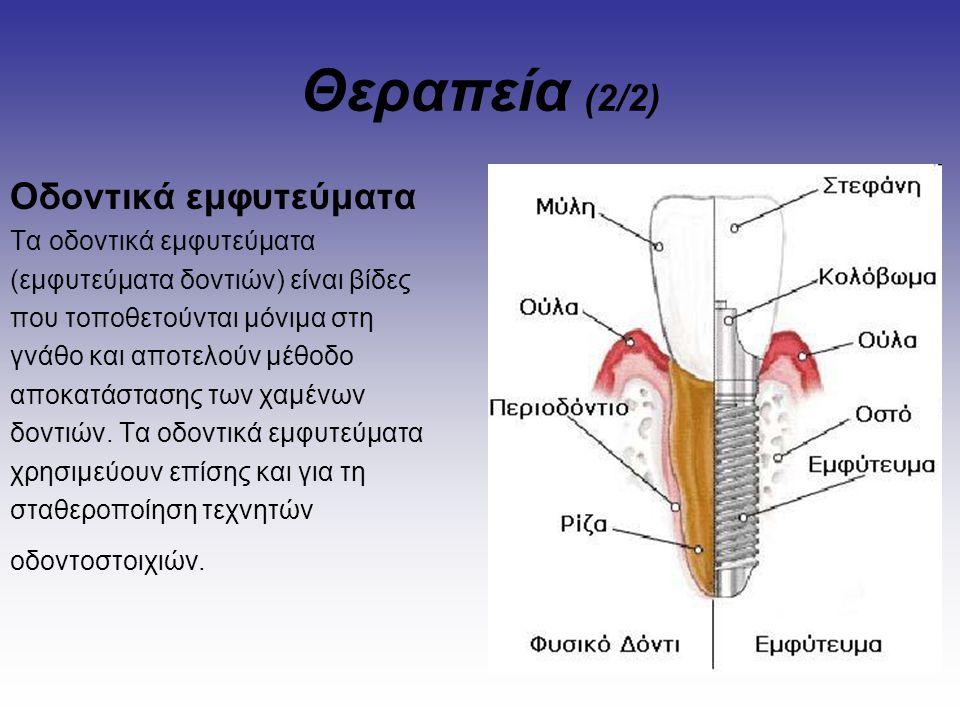 Θεραπεία (2/2) Οδοντικά εμφυτεύματα Τα οδοντικά εμφυτεύματα (εμφυτεύματα δοντιών) είναι βίδες που τοποθετούνται μόνιμα στη γνάθο και αποτελούν μέθοδο
