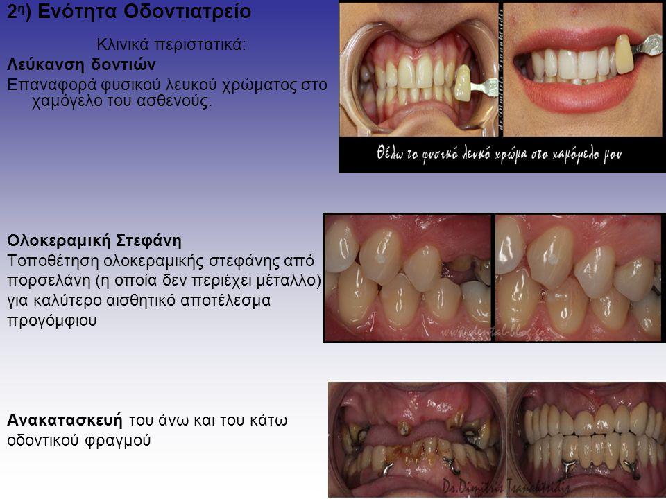 2 η ) Ενότητα Οδοντιατρείο Κλινικά περιστατικά: Λεύκανση δοντιών Επαναφορά φυσικού λευκού χρώματος στο χαμόγελο του ασθενούς. Ολοκεραμική Στεφάνη Τοπο