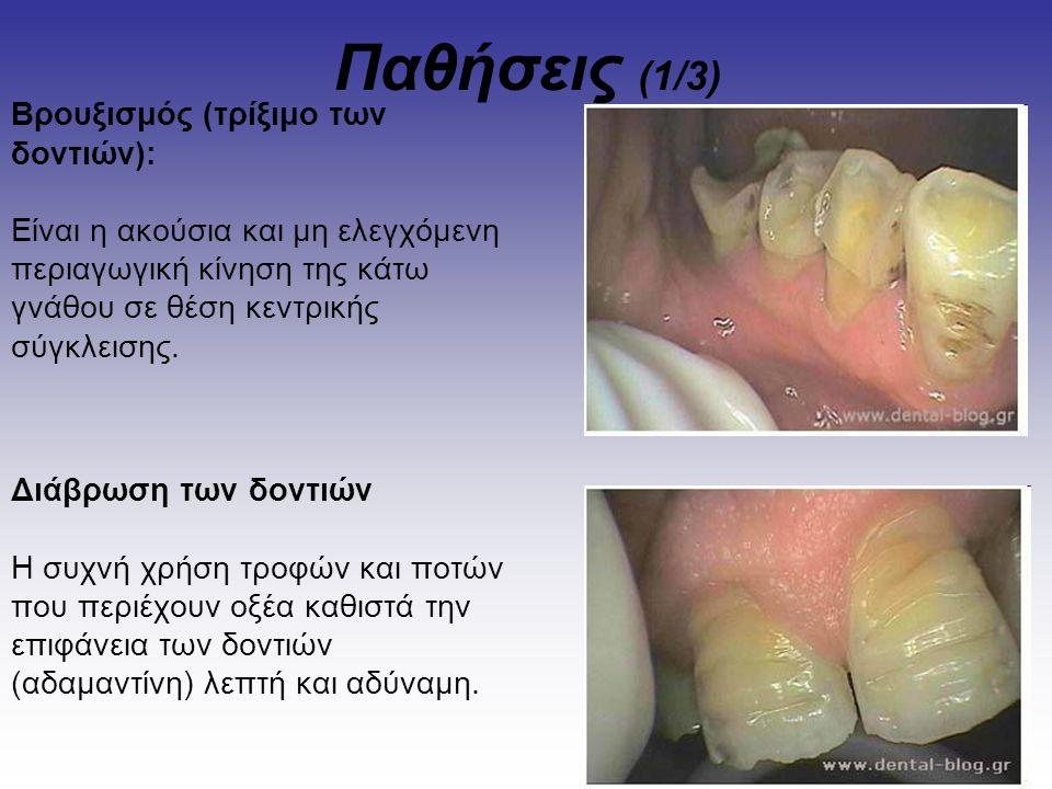 Παθήσεις (2/3) Ουλίτιδα είναι η φλεγμονή των ούλων και παρατηρείται έντονο ερυθρό χρώμα των ούλων (τάση για αιμορραγία) και διόγκωση των μεσοδόντιων θηλών.