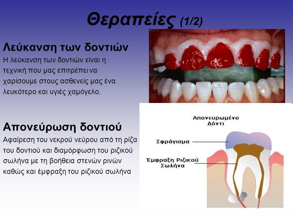 Θεραπείες (1/2) Λεύκανση των δοντιών Η λεύκανση των δοντιών είναι η τεχνική που μας επιτρέπει να χαρίσουμε στους ασθενείς μας ένα λευκότερο και υγιές