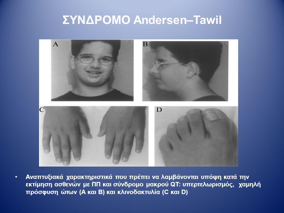 ΣΥΝΔΡΟΜΟ Andersen–Tawil Αναπτυξιακά χαρακτηριστικά που πρέπει να λαμβάνονται υπόψη κατά την εκτίμηση ασθενών με ΠΠ και σύνδρομο μακρού QT: υπερτελωρισ