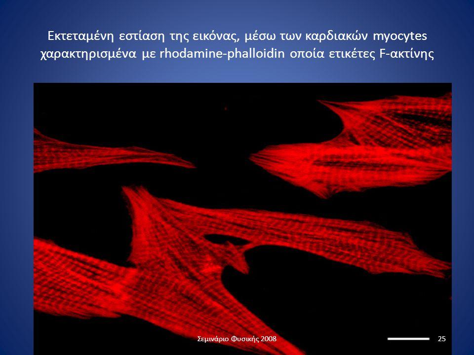 Εκτεταμένη εστίαση της εικόνας, μέσω των καρδιακών myocytes χαρακτηρισμένα με rhodamine-phalloidin οποία ετικέτες F-ακτίνης 25Σεμινάριο Φυσικής 2008