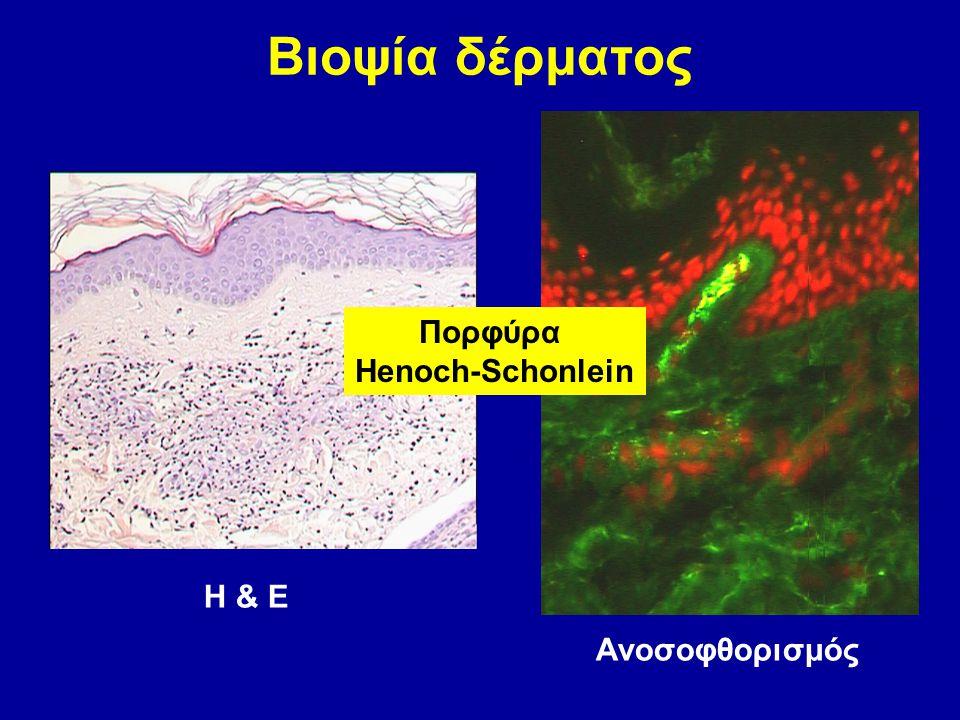 Βιοψία δέρματος Η & Ε Ανοσοφθορισμός Πορφύρα Henoch-Schonlein