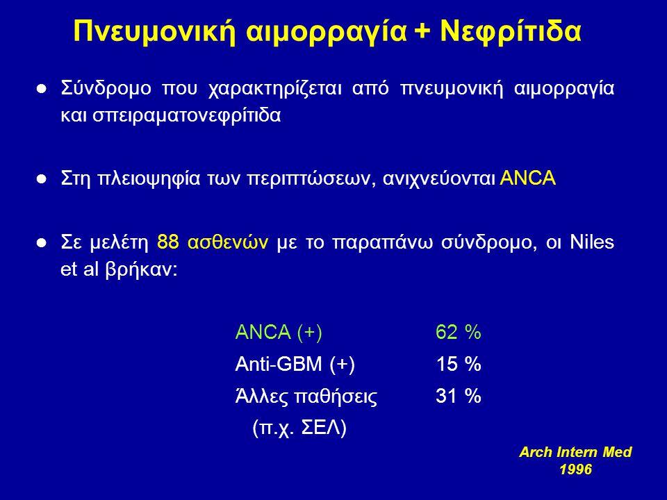 Πνευμονική αιμορραγία + Νεφρίτιδα Σύνδρομο που χαρακτηρίζεται από πνευμονική αιμορραγία και σπειραματονεφρίτιδα Στη πλειοψηφία των περιπτώσεων, ανιχνε