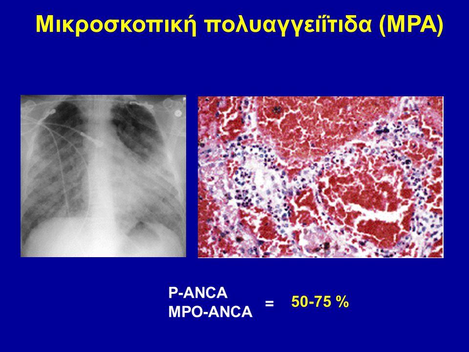 Μικροσκοπική πολυαγγειΐτιδα (MPA) P-ANCA MPO-ANCA 50-75 % =