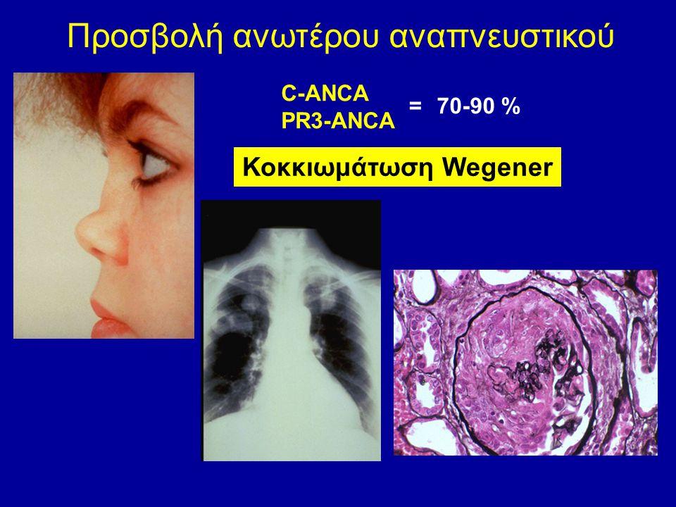 Προσβολή ανωτέρου αναπνευστικού C-ANCA PR3-ANCA 70-90 %= Κοκκιωμάτωση Wegener