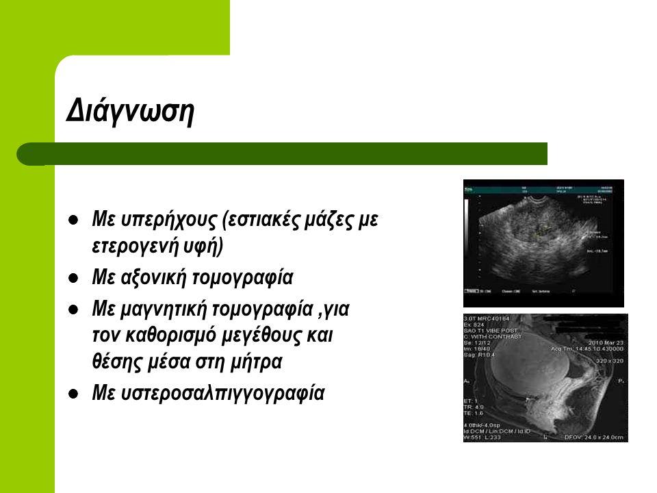Διάγνωση Με υπερήχους (εστιακές μάζες με ετερογενή υφή) Με αξονική τομογραφία Με μαγνητική τομογραφία,για τον καθορισμό μεγέθους και θέσης μέσα στη μήτρα Με υστεροσαλπιγγογραφία