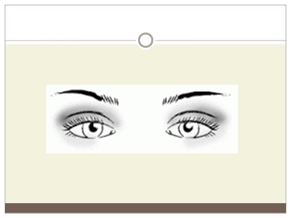Αραιόφθαλμα μάτια Είναι τα μάτια που έχουν μεγάλη απόσταση μεταξύ τους, έχουν κανονικό μέγεθος, σωστό βάθος, αμυγδαλωτό σχήμα, είναι οριζόντια και αφήνουν να φαίνεται μεγάλο μέρος του κινητού βλεφάρου.