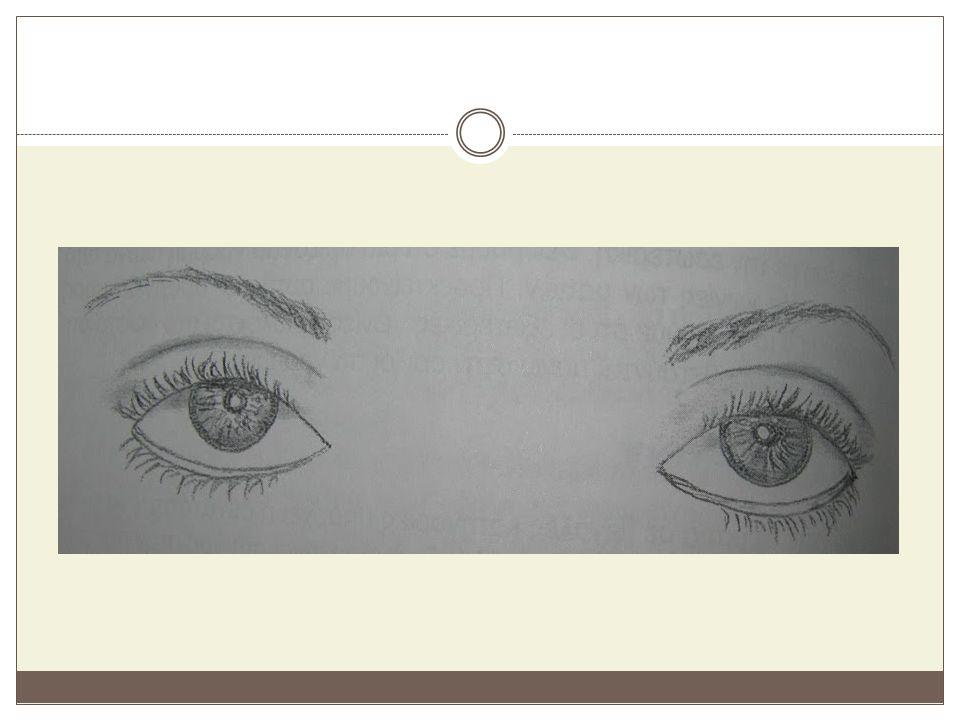 Πυκνόφθαλμα μάτια Είναι τα μάτια που οι δύο εσωτερικές τους γωνίες βρίσκονται σε απόσταση μικρότερη από το μήκος ενός ματιού.