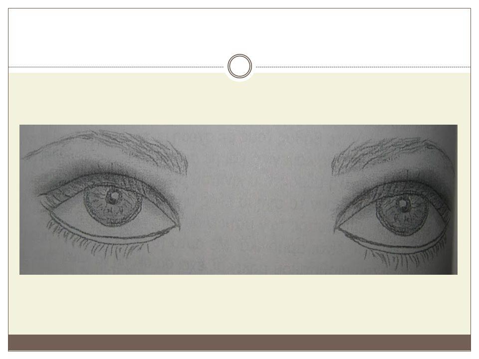 Εξώφθαλμα μάτια Σ΄αυτή την κατηγορία ανήκουν τα μάτια που προεξέχουν από την οφθαλμική κόγχη.