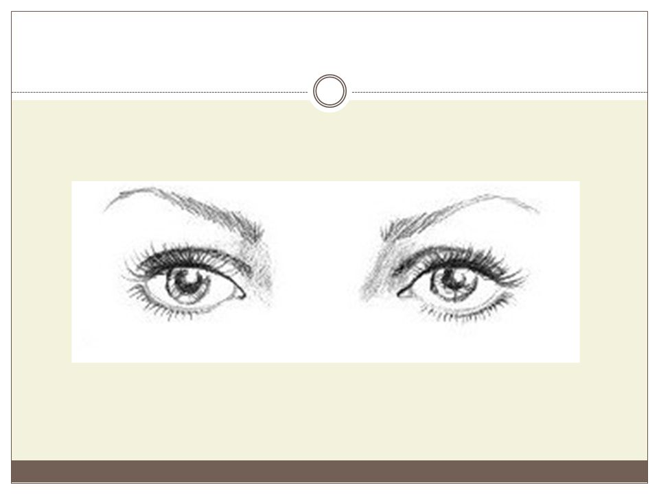 Μάτια με πτώση βλεφάρου Τα μάτια αυτά έχουν το χαρακτηριστικό των πεσμένων βλεφάρων.