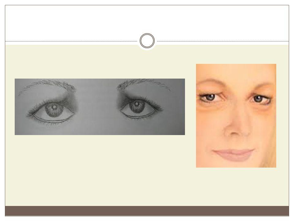 Μικρά μάτια Είναι τα μάτια που σε σχέση με τη συνολική επιφάνεια του προσώπου, κατέχουν μικρό τμήμα του.