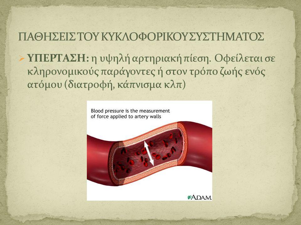 ΥΠΕΡΤΑΣΗ: η υψηλή αρτηριακή πίεση. Οφείλεται σε κληρονομικούς παράγοντες ή στον τρόπο ζωής ενός ατόμου (διατροφή, κάπνισμα κλπ)