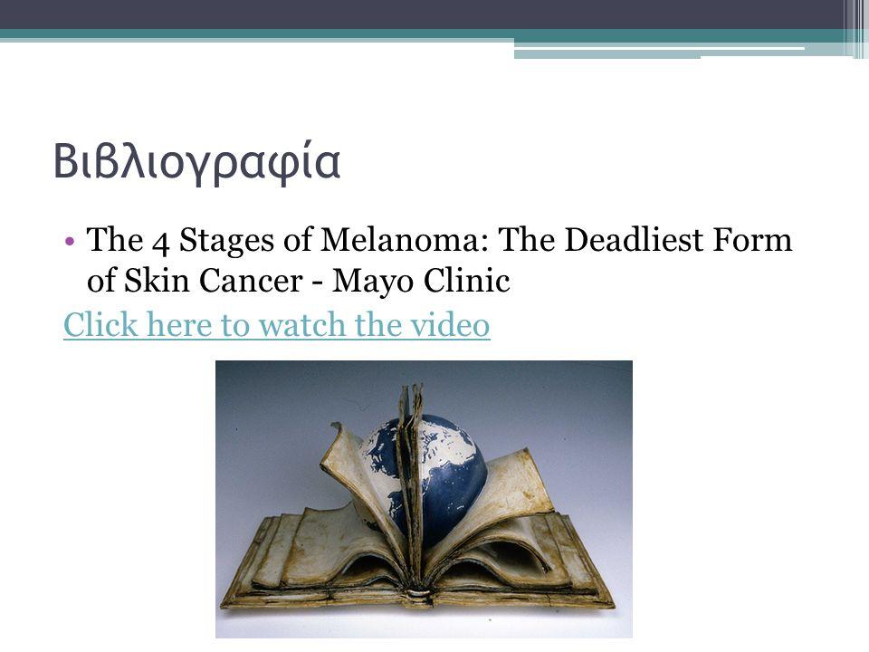 Βιβλιογραφία The 4 Stages of Melanoma: The Deadliest Form of Skin Cancer - Mayo Clinic Click here to watch the video