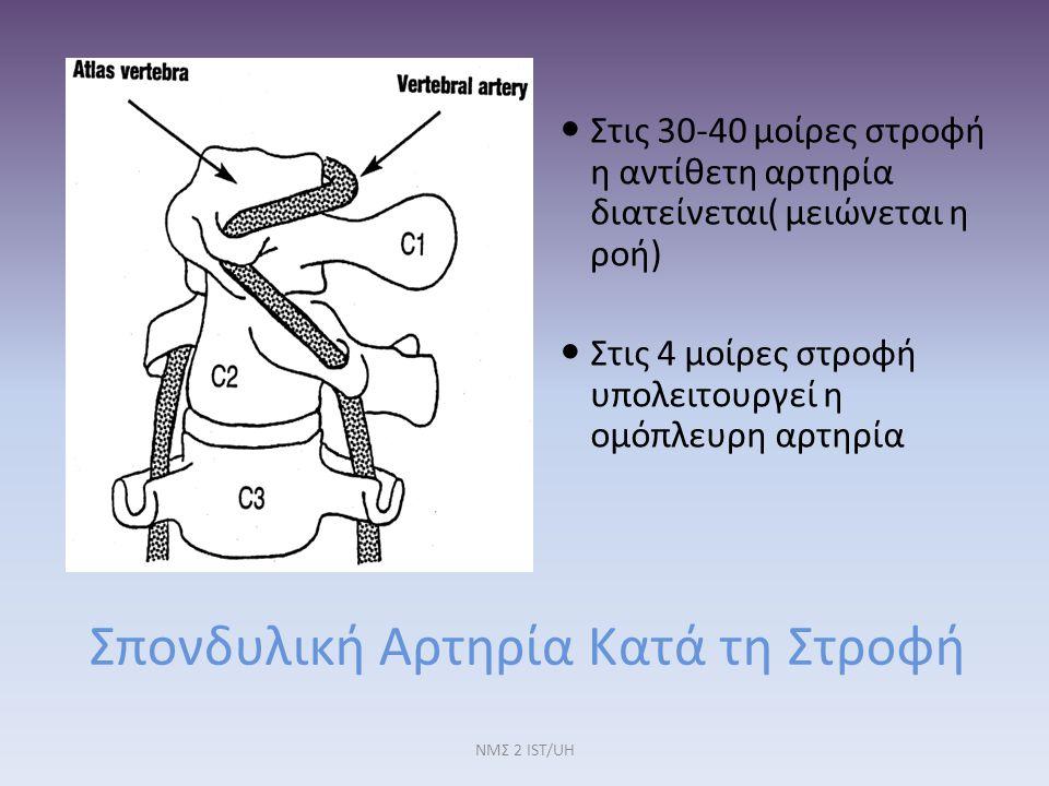 Σπονδυλική Αρτηρία Κατά τη Στροφή Στις 30-40 μοίρες στροφή η αντίθετη αρτηρία διατείνεται( μειώνεται η ροή) Στις 4 μοίρες στροφή υπολειτουργεί η ομόπλ