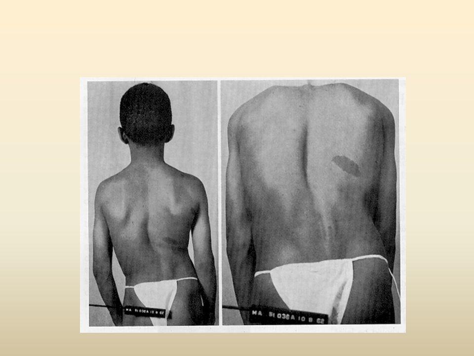 ΝΕΥΡΟΛΟΓΙΚΗ ΕΞΕΤΑΣΗ (Ο4 ΕΠΙΠΕΔΟ) ΚΙΝΗΤΙΚΟΤΗΤΑ –Πρόσθιος κνημιαίος Ο4, εν τω βάθει Περονιαίο νεύρο Ραχιαία κάμψη – έσω στροφή άκρου ποδός (υπό αντίσταση) ΑΝΤΑΝΑΚΛΑΣΤΙΚΑ – Επιγονατίδας ( Ο2, Ο3, 04) ΑΙΣΘΗΤΙΚΟΤΗΤΑ –Έσω επιφάνεια της κνήμης και του ποδιού