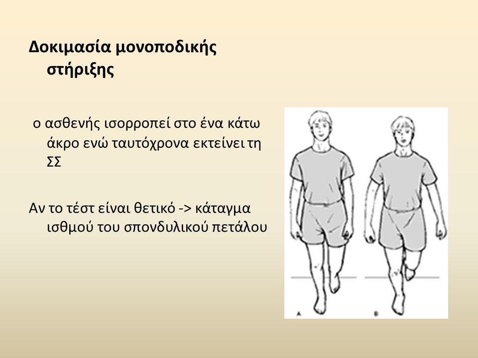 Δοκιμασία μονοποδικής στήριξης ο ασθενής ισορροπεί στο ένα κάτω άκρο ενώ ταυτόχρονα εκτείνει τη ΣΣ Αν το τέστ είναι θετικό -> κάταγμα ισθμού του σπονδ