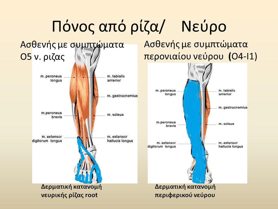 Πόνος από ρίζα/ Νεύρο Ασθενής με συμπτώματα περονιαίου νεύρου (Ο4-Ι1) Ασθενής με συμπτώματα Ο5 ν. ριζας Δερματική κατανομή νευρικής ρίζας root Δερματι