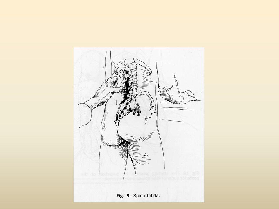 Πόνος από ρίζα/ Νεύρο Ασθενής με συμπτώματα περονιαίου νεύρου (Ο4-Ι1) Ασθενής με συμπτώματα Ο5 ν.