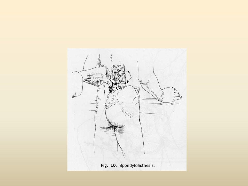 Τι συμπτώματα έχει ένας ασθενής με δυσλειτουργία νευρικής ρίζας Η δυσλειτουργία νευρικής ρίζας είναι γνωστή ως νευροπαθητικός πόνος Ο ασθενής παραπονείται για: – Βελόνες και καρφίτσες (παραισθησία) – Απώλεια αίσθησης(αναισθησία) σε ένα συγκεκριμένο δερμοτόμιο