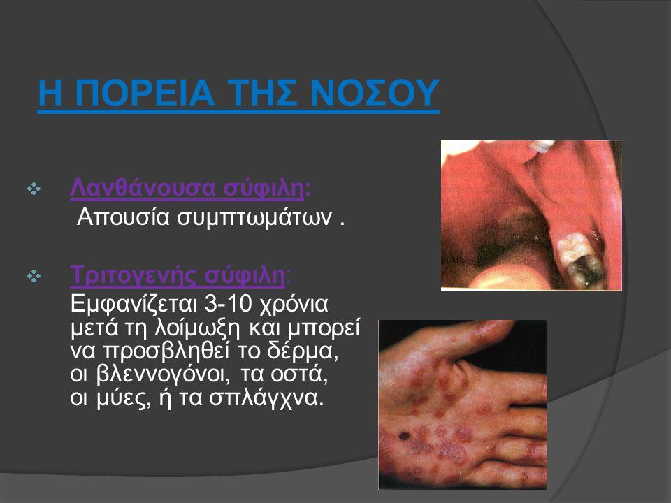 Η ΠΟΡΕΙΑ ΤΗΣ ΝΟΣΟΥ  Λανθάνουσα σύφιλη: Απουσία συμπτωμάτων.  Τριτογενής σύφιλη: Εμφανίζεται 3-10 χρόνια μετά τη λοίμωξη και μπορεί να προσβληθεί το