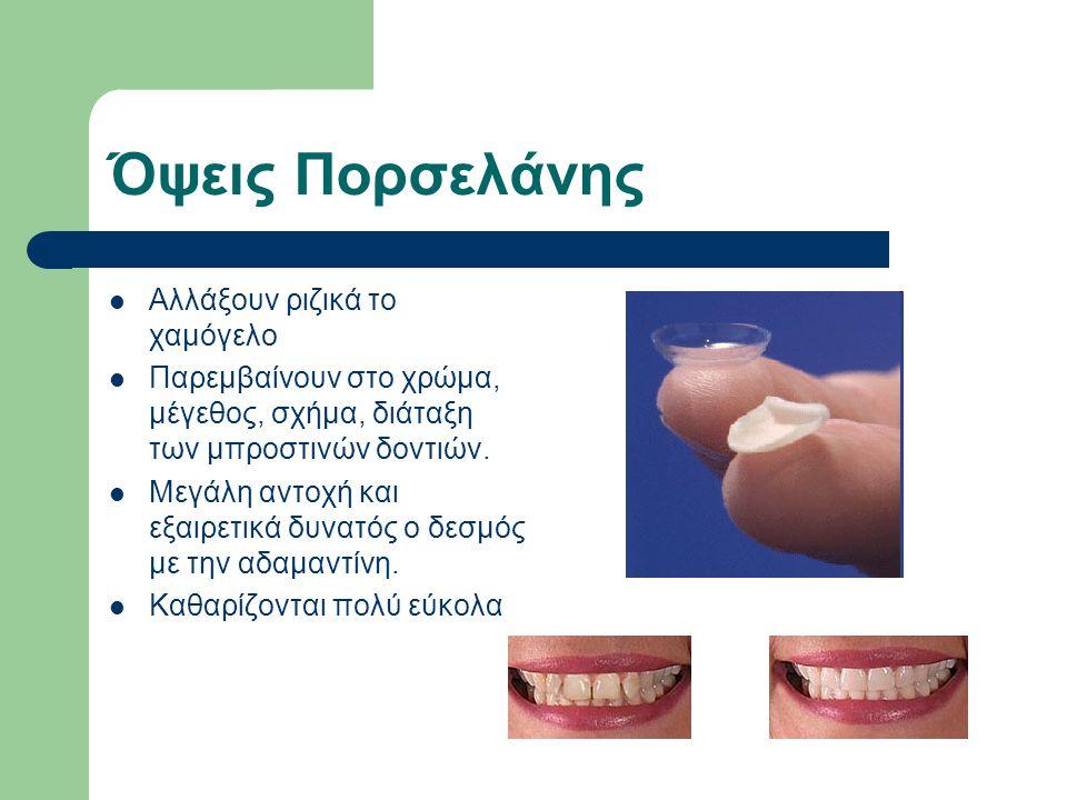 Όψεις Πορσελάνης Αλλάξουν ριζικά το χαμόγελο Παρεμβαίνουν στο χρώμα, μέγεθος, σχήμα, διάταξη των μπροστινών δοντιών. Μεγάλη αντοχή και εξαιρετικά δυνα