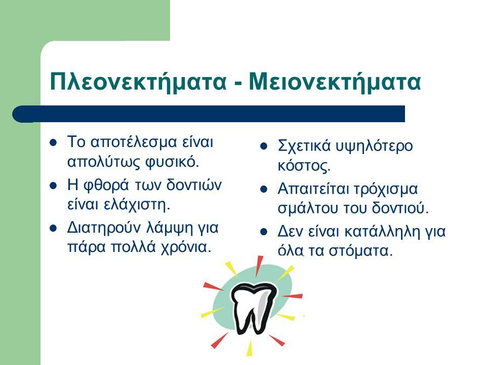 Πλεονεκτήματα - Μειονεκτήματα Το αποτέλεσμα είναι απολύτως φυσικό. Η φθορά των δοντιών είναι ελάχιστη. Διατηρούν λάμψη για πάρα πολλά χρόνια. Σχετικά